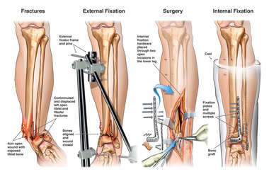 Left Ankle Fractures with External and Internal Fixation Procedures