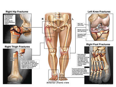 Bilateral Lower Extremity Fractures