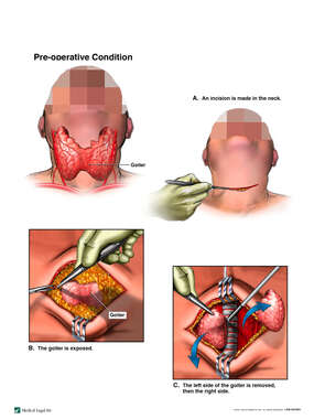 Total Thyroidectomy