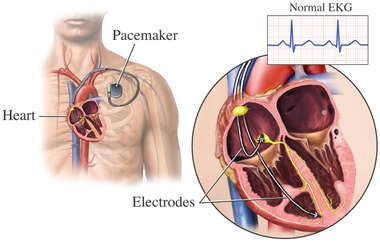 Pacemaker Insertion