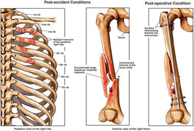 Post-accident Fractures of the Posterior Ribs and Femur with Surgical Fixation