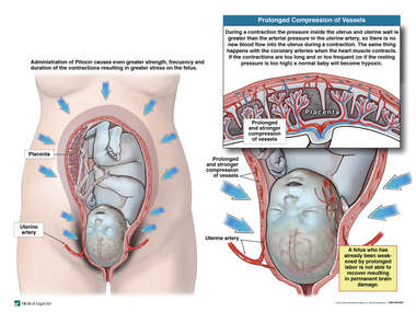 Hyperstimulation of the Uterus and Hypertonic Uterine Contractions