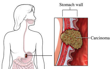 Stomach Cancer - Malignant Carcinoma
