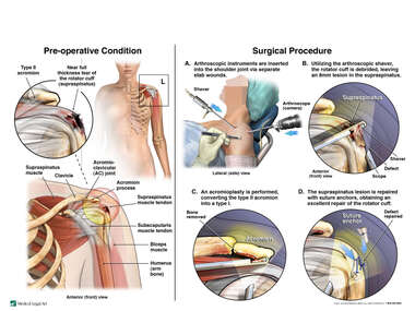 Left Rotator Cuff Tear with Arthroscopic Repairs