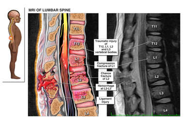 Lateral Child Figure with Pre-Operative Condition of the Thoraco-Lumbar Spine