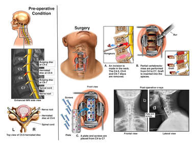 Cervical Spine Injuries with Three Level Anterior Cervical Discectomy and Fusion
