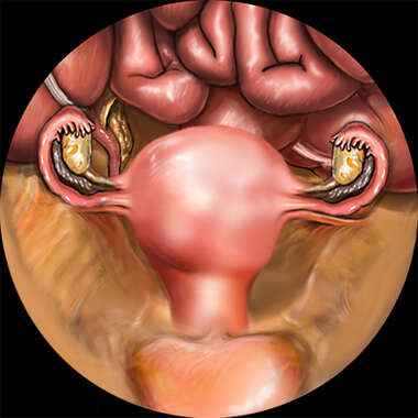 Laparoscopic-assisted Vaginal Hysteroscopy.
