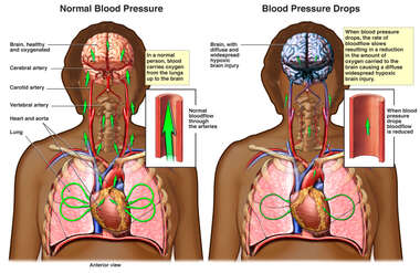 Reduced Blood Pressure with Diffuse Hypoxic Brain Injury