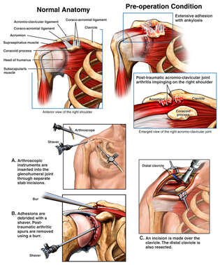 Right Shoulder Injuries (Arthritis) with Surgical Repairs