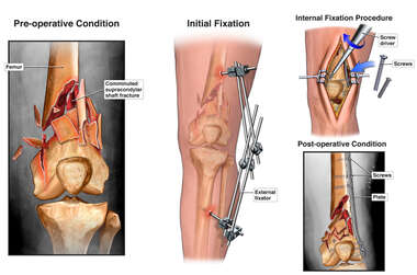 Left Femur Fracture with External and Internal Fixation