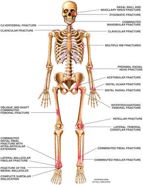 Skeletal Figure with Multiple Post-accident Fractures to the Skull, Thorax, Pelvis, Arms and Legs Bilaterally