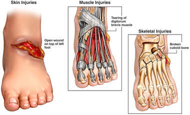 Traumatic Left Foot Injuries