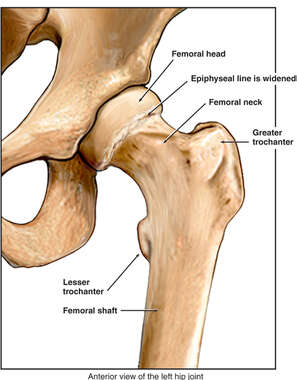 Widening of the Capital Femoral Epiphysis
