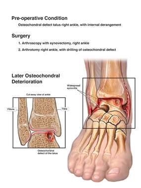 Osteochondral Right Ankle with Arthroscopy and Synovectomy