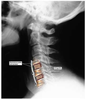 Colorized Lateral X-Ray Film of the Cervical Spine with Post-operative Fusion Plate and Grafts
