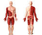 42% Total Body Surfaces Area Burns to the Arms, Torso and Thighs