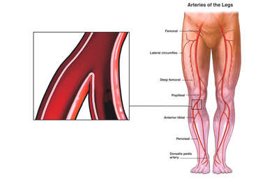 Arteries of the Lower Legs with Popliteal Bifurcation