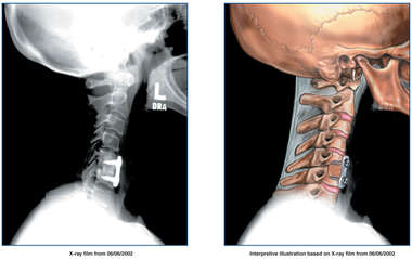 Lateral View of Post-operative Condition of the Cervical Spine Following Fusion