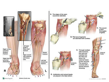 Bilateral Lower Extremity Fractures with Initial Surgical Repairs