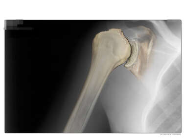 Colorization of X-ray: Glenohumeral Joint