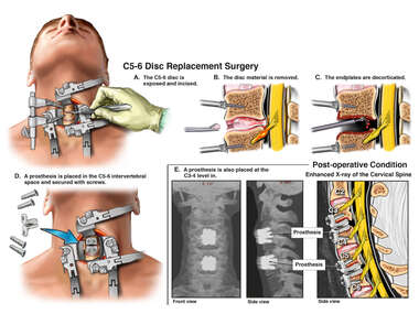 C3-4 and C5-6 Cervical Spine Disc Replacement Surgeries