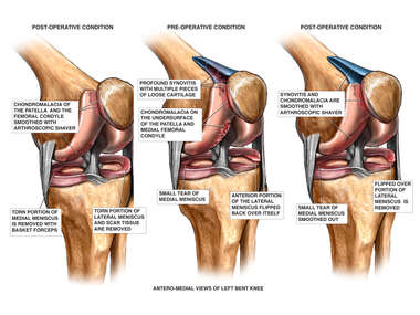 Chondromalacia, Synovitis and Meniscal Tears of the Knee