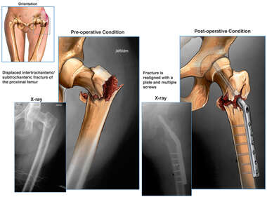 Left Hip Fracture with Initial Surgical Fixation