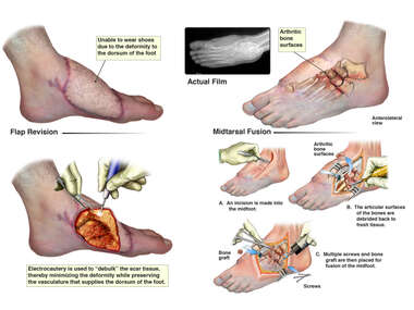 Left Foot Flap Revision and Tarsal Metatarsal Fusion of the Left Foot