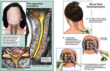 Cervical Spine Injuries and Fusion