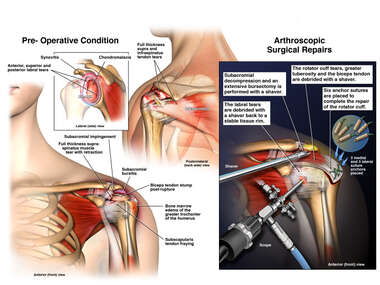 Left Shoulder Injuries with Arthroscopic Surgery