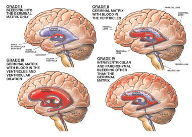 Classification of Brain Hemorrhage