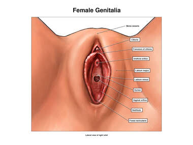 Female Genitalia - Unperforated Hymen