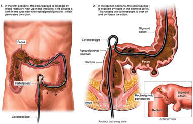 Colonoscopy with Iatrogenic (Caused by Physician) Perforation of the Sigmoid Colon