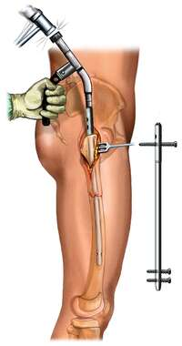 Intramedullary Rod: Femur