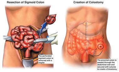 Creation of Colostomy