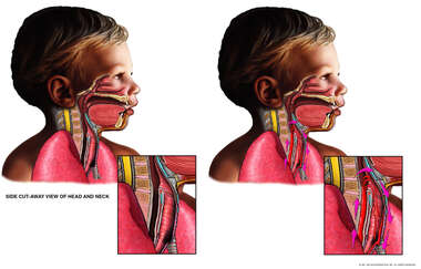 Proper Endotracheal Intubation for a Child