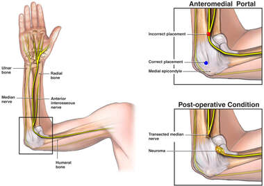 Intra-operative Arthroscopic Median Nerve Injury
