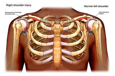 Post Accident Shoulder Injuries