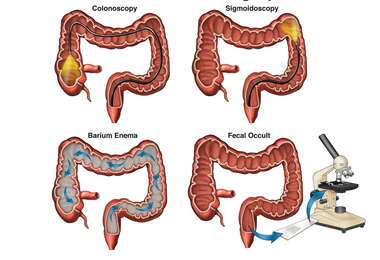 Colon Cancer Screening Options