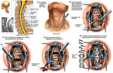 Spine Surgery - C5-6 and C6-7 Anterior Cervical Discectomy with Spinal Fusion and Plating
