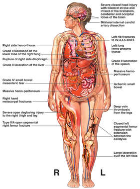 Female Figure with Overview of Multiple Post-accident Injuries to the Brain, Thorax, Abdomen and Bilateral Extremities