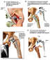 Left Hip Revision Surgeries
