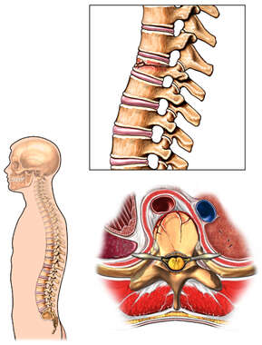 Compression Fracture of the T12 Vertebral Body