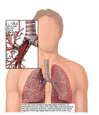 Lung Cancer - Location of Right Lung Tumor