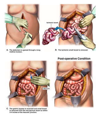 Small Bowel Resection with Reversed Gastric Bypass