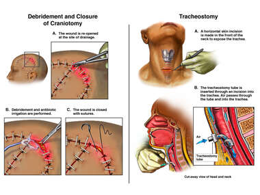 Debridement and Closure of Craniotomy Wound with Tracheostomy