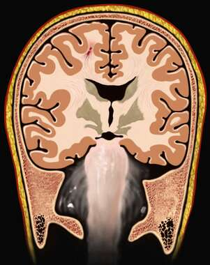 Brain with Cerebral Hemispheres (MRI), Cut-away View