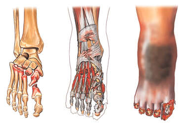 Crush Injuries of the Foot and Ankle