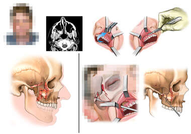 Right Sided Facial Fractures with Surgical Repair