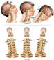Unrestrained Front to Back and Side to Side Head and Neck Movement